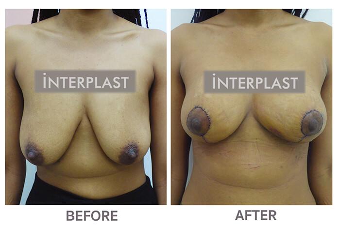 Breast Lift in bangkok06