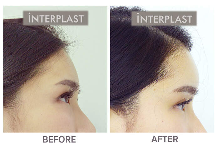 Forehead augmentation in bangkok02