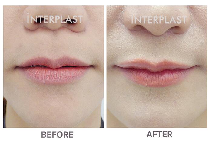 Lip lift surgery in bangkok01