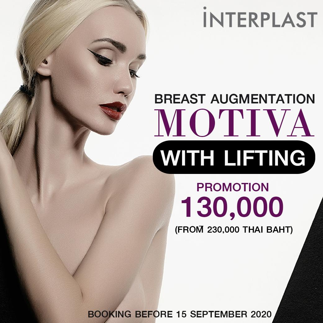 motiva-lifting-130000