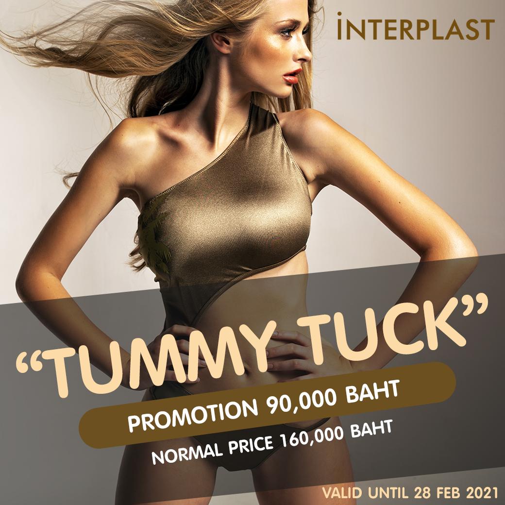 tummytuck